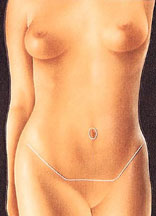 Abdominoplasty 5
