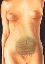 Mini Abdominoplasty 1