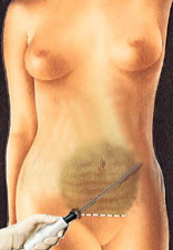 Mini Abdominoplasty 2