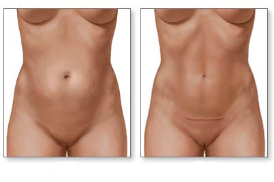 Mini Abdominoplasty